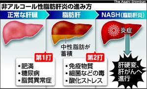 アルコール性肝炎と非アルコール脂肪性肝炎 | e-ヘ …